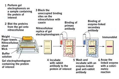 proteinograma o que temas selectos de biof 205 sica 176 176 176 electroforesis