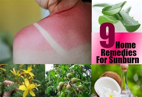 best home remedies for sunburn treatments cure