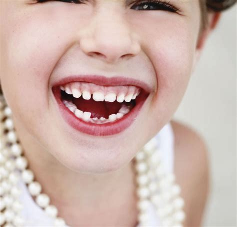 losing teeth teeth helping your take it to the next level children s dentist in