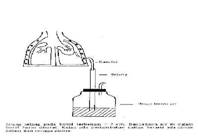 Botol Wsd otoymarotoy catamenial pneumothorax