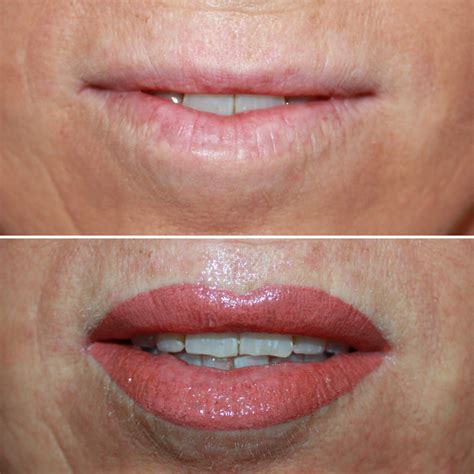 lip tattoo lip perth enhance skin aesthetics claremont