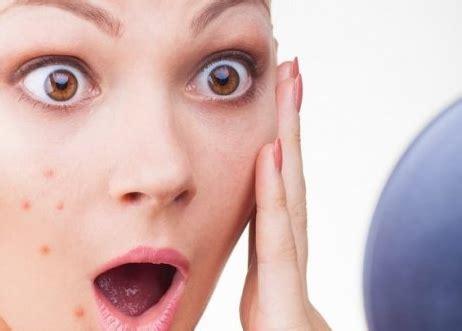 review  merk cream penghilang flek hitam wajah