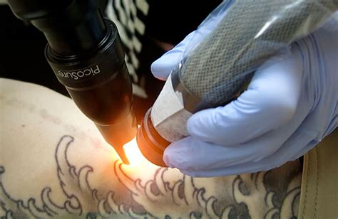 tattoo removal allentown pa picosure removal laser is now here in allentown pa