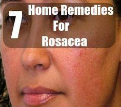 best 25 rosacea remedies ideas on makeup for