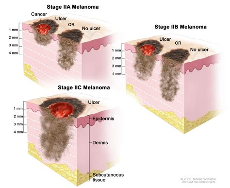 melanoma treatment pdqpatient version national