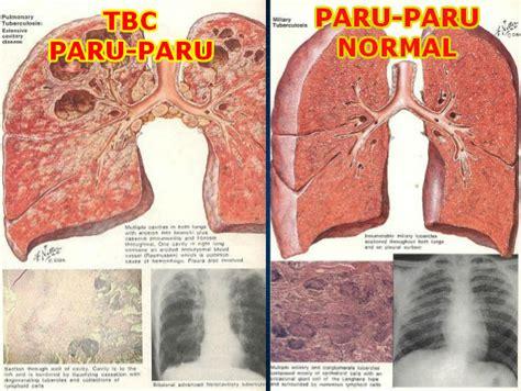 Obat Tb Tbc Batuk Biasa Obat Flu Influenza Herbal Alami Qnc obat tbc obat tb yang uh menyembuhkan tbc secara alami