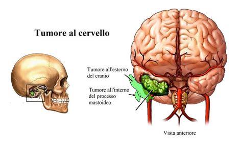 tumore in testa sintomi vertigini o giramenti di testa sintomi cause diagnosi e