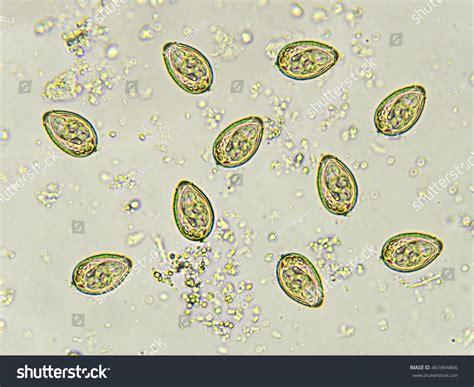 eggs opisthorchis viverrini southeast liver stock