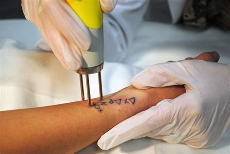 the best tattoo removal laser removal in des moines iowa astanza laser