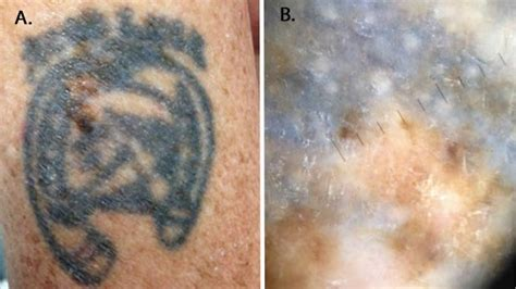 can you tattoo over moles can you a melanoma inked skin needs closer attention