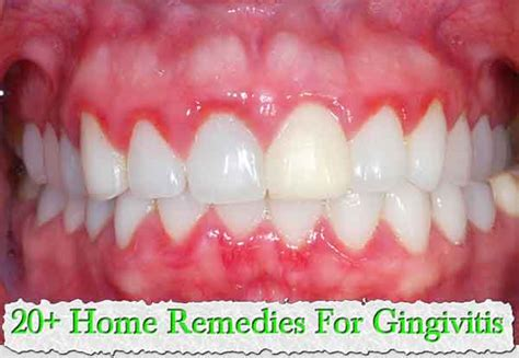 top 20 home remedies for gingivitis harcourt health