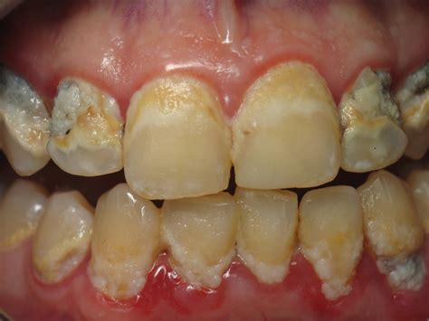 aleve side effects bleeding gums kansas city gingivitis and periodontal gum disease treatment