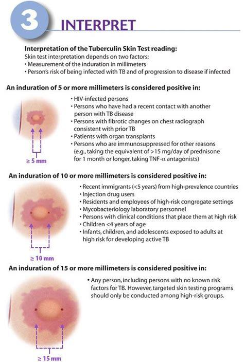 test mantoux how to interpret mantoux test of positive tb nursing