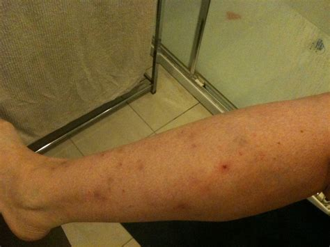 Acne And Detoxing From Heroin by Topical Steroid Withdrawal Journey Healing Eczema And
