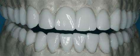 dental design lab glasgow support