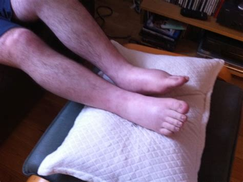 is it normal to have swollen feet after c section amyloidosis and a bridge over troubled water