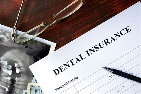 emergency room no insurance diy dental care how to deal with dental emergencies