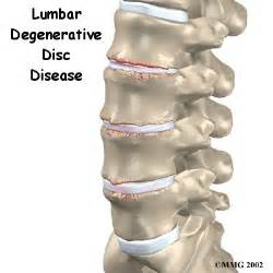 lumbar degenerative disc disease ddd houston methodist