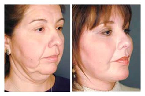 before and after facelift surgery pictures epione