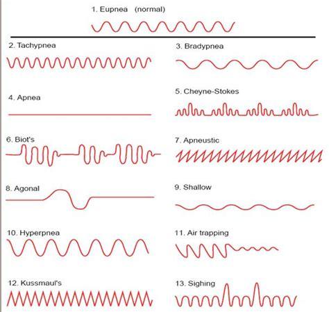 un pattern definition semiologia tipos de respiraci 243 n kussmaul cheyne stokes