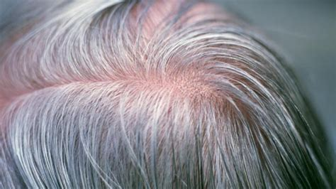 can bed bugs get in your hair bbc future can stress turn your hair grey overnight