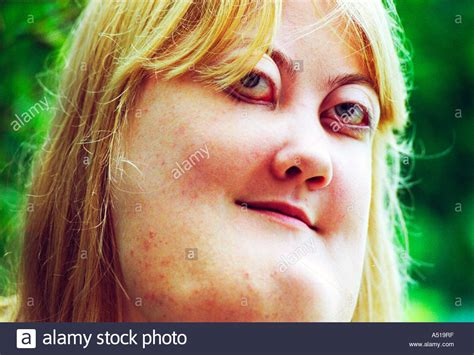 big chinned women a young woman with cherubism the rare genetic condition