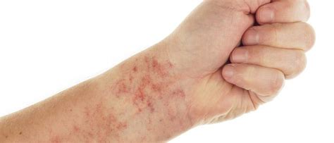 imagenes de manchas rojas en los brazos causas de las petequias 191 por qu 233 salen esas manchitas