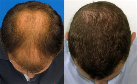 what does 2000 hair gradt look like do mega session doctors sometimes split grafts forum by