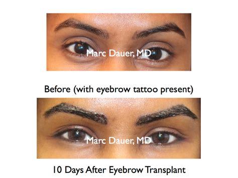 eyebrow transplant spiky hairs eyebrow transplant photos los angeles eyebrow
