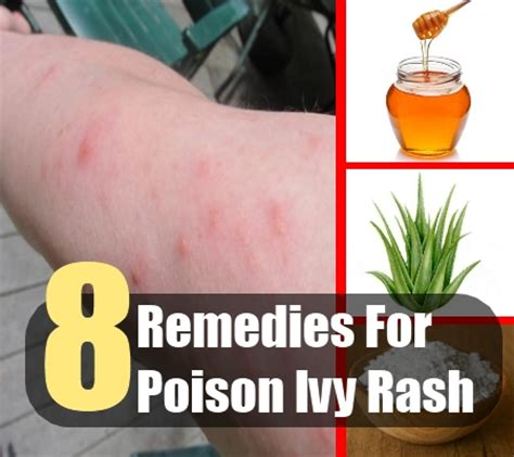 8 home remedies for poison rash treatments