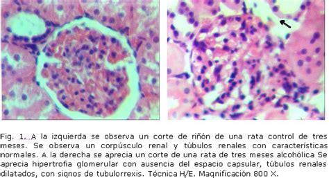 imagenes histologicas pdf efectos de la ingesti 243 n cr 243 nica de etanol sobre las