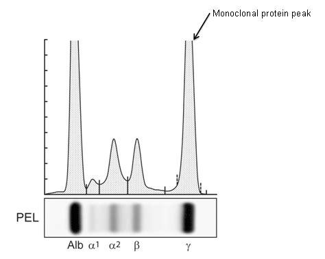 m protein mgus image gallery monoclonal gammopathy