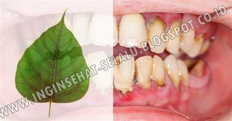 Bersihkan Karang Gigi Ke Dokter di gigimu banyak plak yang menempel tak perlu ke dokter gigi berkumurlah pakai daun ini