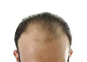 20 month hair thinning on top hair toppiks why is my hair thinning thinning hair in your 20 s 30 s