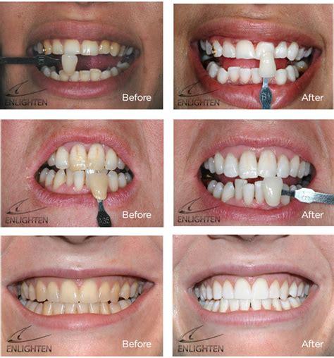 enlighten tooth whitening  brightness  smile cliniq
