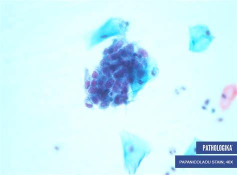 afip devolucion 15 ao 2015 caso estudo 1 citologia ginecol 243 gica pathologika
