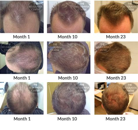 rogaine success stories hair loss success stories belgravia centre hair loss blog