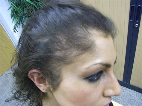 female pattern hair loss nice guidelines androgenetic alopecia or female pattern hair loss case