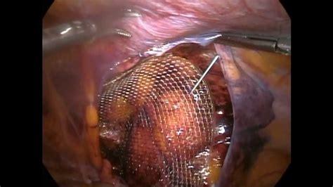 inguinal hernia hernia inguinal inguinal hernia
