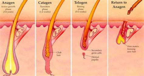 folliculitis cause pubic hair to grow sideways and in layers laser hair removal as a treatment for ingrown hairs