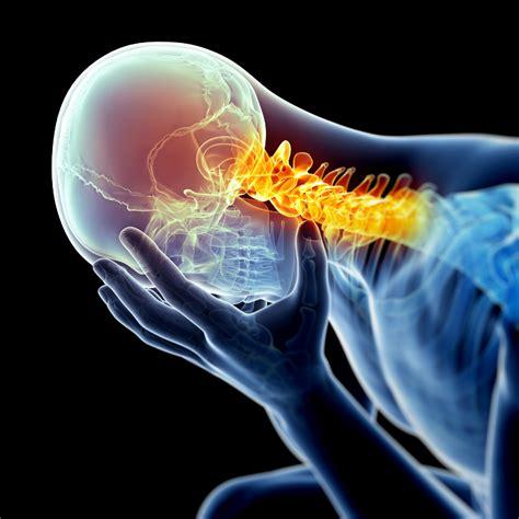 dolori collo e testa dolore cervicale e mal di testa