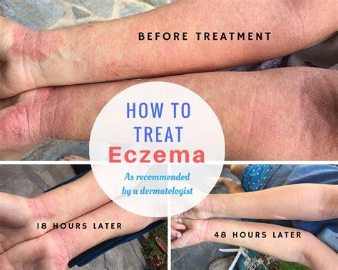 eczema best treatment how to treat eczema severe of eczema fruit