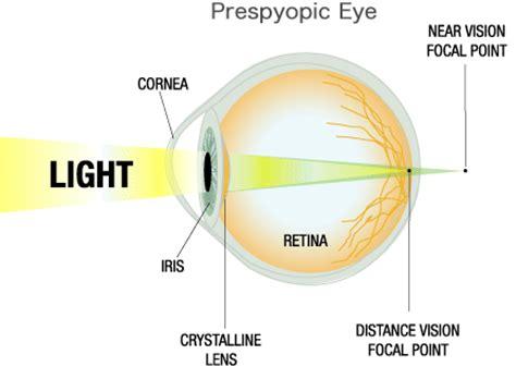 image gallery presbyopia