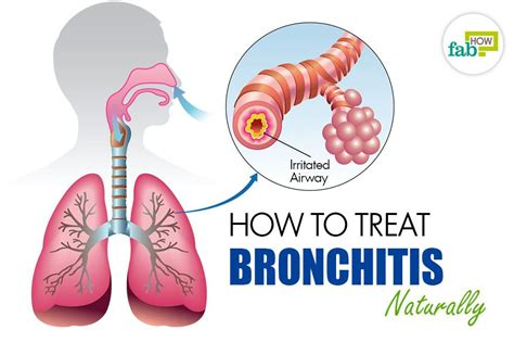 Http Www Dogsnaturallymagazine How To Detox Your by Inhaler For Bronchitis