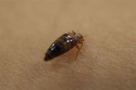 bed meaning bed bugs thriving meaning more calls to pest controllers liverpool echo