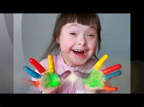 imagenes niños sindrome down jugando actividad adaptada para ni 241 os as con s 237 ndrome de down