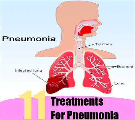 11 treatments for pneumonia how to treat