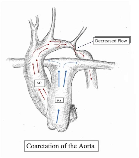 diagram of the aorta 10 images about coarctation of the aorta on a