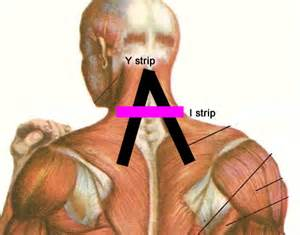 How to use kinesio tapes to relieve neck pain 8 steps wikihow