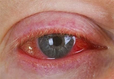 pink eye known as conjunctivitis is a situation